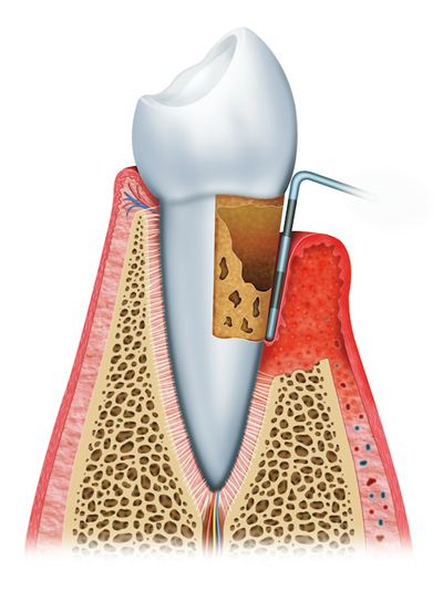 Advanced Periodontitis